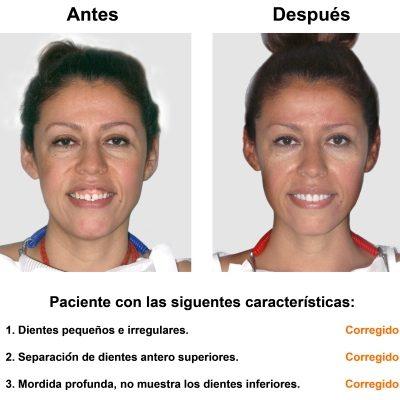Smiles-Peru-Carillas-de-Porcelana-Diseno-de-Sonrisa-Caso-Clinico-1
