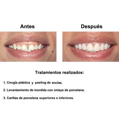 Smiles-Peru-Carillas-de-Porcelana-Diseno-de-Sonrisa-Caso-Clinico-2