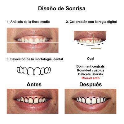 Smiles-Peru-Carillas-de-Porcelana-Diseno-de-Sonrisa-Caso-Clinico-3
