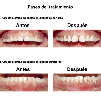 Smiles-Peru-Carillas-de-Porcelana-Diseno-de-Sonrisa-Caso-Clinico-4
