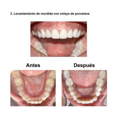 Smiles-Peru-Carillas-de-Porcelana-Diseno-de-Sonrisa-Caso-Clinico-5