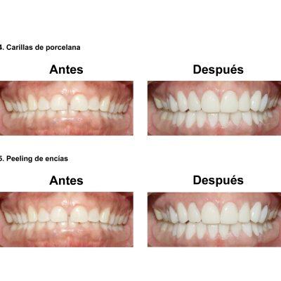 Smiles-Peru-Carillas-de-Porcelana-Diseno-de-Sonrisa-Caso-Clinico-6