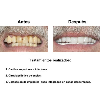 Smiles-Peru-Implantes-Dentales-Caso-Clinico-2