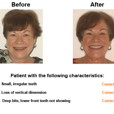 Linda-case-study-slide2-EN-v1