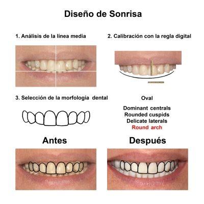 Smiles-Peru-Carillas-de-Porcelana-Estetica-Dental-Caso-Clinico-3