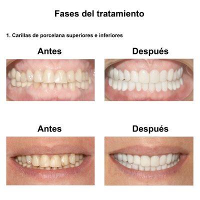 Smiles-Peru-Carillas-de-Porcelana-Estetica-Dental-Caso-Clinico-4