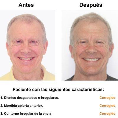 Smiles-Peru-Caso-Clinico-Dentista-1