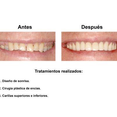Smiles-Peru-Caso-Clinico-Dentista-2