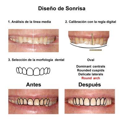 Smiles-Peru-Caso-Clinico-Dentista-3