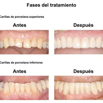 Smiles-Peru-Caso-Clinico-Dentista-4