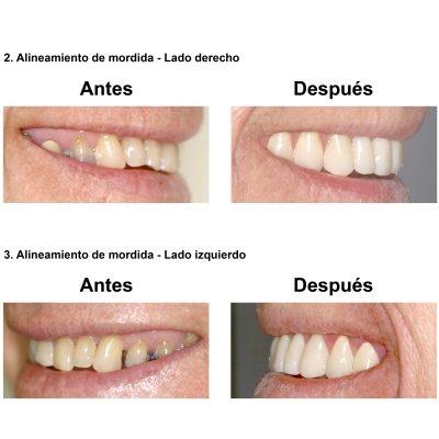 Smiles-Peru-Caso-Clinico-Dentista-5