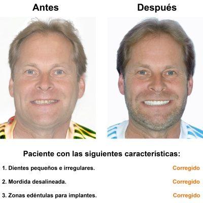 Smiles-Peru-Rehabilitacion-Oral-Caso-Clinico-1