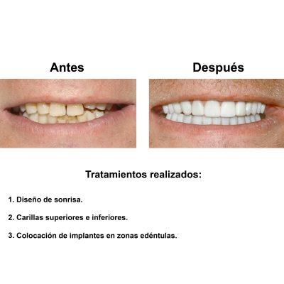 Smiles-Peru-Rehabilitacion-Oral-Caso-Clinico-2