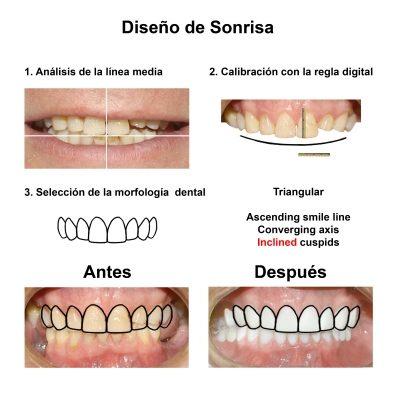 Smiles-Peru-Rehabilitacion-Oral-Caso-Clinico-3
