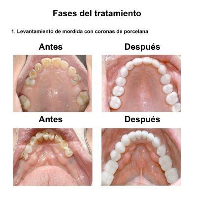 Smiles-Peru-Rehabilitacion-Oral-Caso-Clinico-4