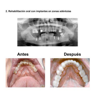 Smiles-Peru-Rehabilitacion-Oral-Caso-Clinico-5