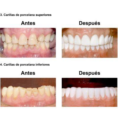 Smiles-Peru-Rehabilitacion-Oral-Caso-Clinico-6