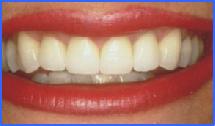 corona dental de porcelana Smiles Peru