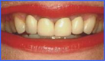 corona de porcelana Smiles Peru