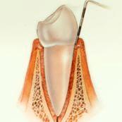 periodoncia-encias-sanas-1