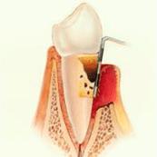 periodoncia-periodontitis-avanzada-3
