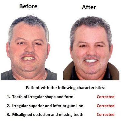 Smiles Peru Oral Rehabilitation (1)
