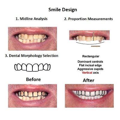 Smiles Peru Oral Rehabilitation (2)