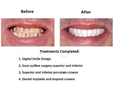 Smiles Peru Oral Rehabilitation (3)