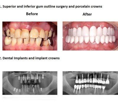 Smiles Peru Oral Rehabilitation (4)