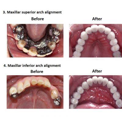 Smiles Peru Oral Rehabilitation (5)