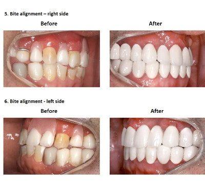 Smiles Peru Oral Rehabilitation (6)