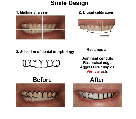 Alex-case-study smiles peru