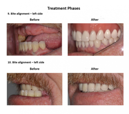 All on Eight Dental Implants Smiles Peru (1)
