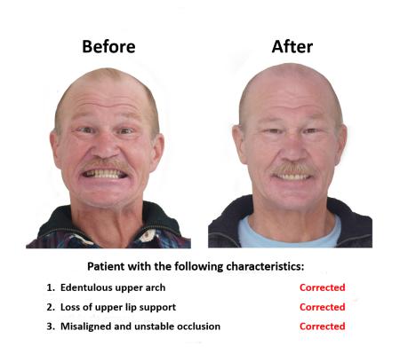All on Eight Dental Implants Smiles Peru (2)