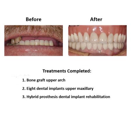 All on Eight Dental Implants Smiles Peru (3)