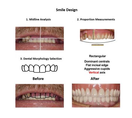 All on Eight Dental Implants Smiles Peru (4)