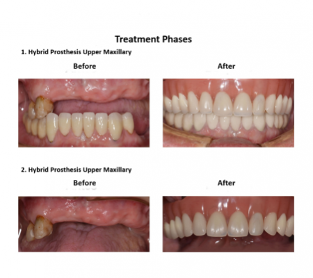 All on Eight Dental Implants Smiles Peru (5)