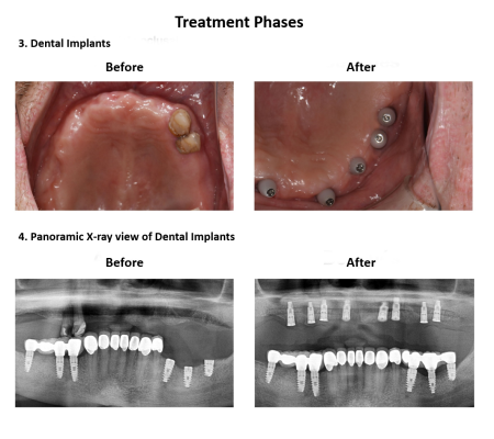 All on Eight Dental Implants Smiles Peru (6)