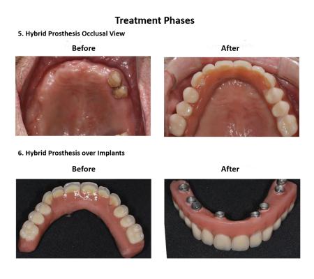 All on Eight Dental Implants Smiles Peru (7)