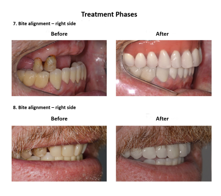 All on Eight Dental Implants Smiles Peru (8)