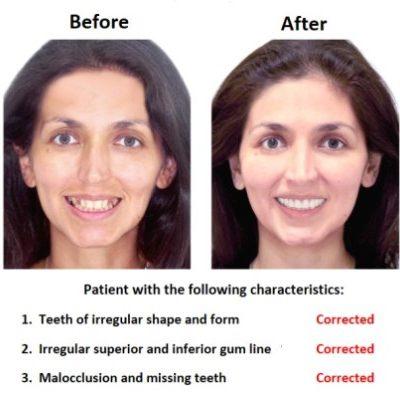 Dental-Implants-Case-Study-Smiles-Peru-1