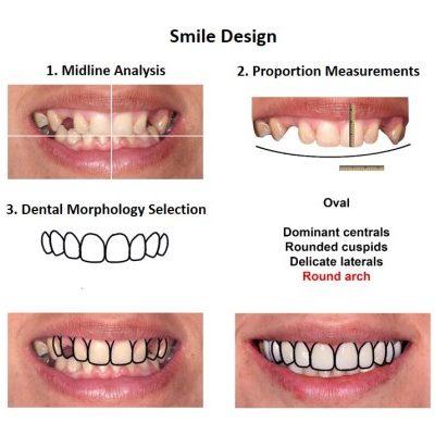 Dental-Implants-Case-Study-Smiles-Peru-2