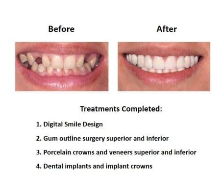 Dental-Implants-Case-Study-Smiles-Peru-
