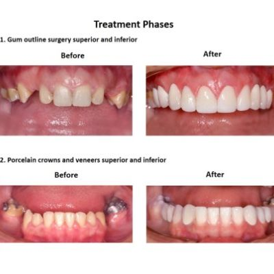 Dental-Implants-Case-Study-Smiles-Peru-4