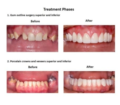 Dental-Implants-Case-Study-Smiles-Peru
