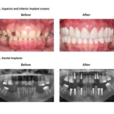 Dental-Implants-Case-Study-Smiles-Peru-5
