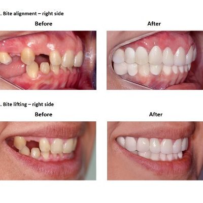 Dental-Implants-Case-Study-Smiles-Peru-7