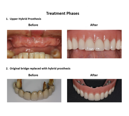 Dental implant supported prosthesis Smiles Peru Dental Lima Dentist (4)