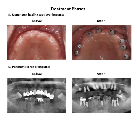 Dental implant supported prosthesis Smiles Peru Dental Lima Dentist (6)
