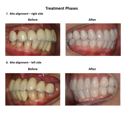 Dental implant supported prosthesis Smiles Peru Dental Lima Dentist (7)